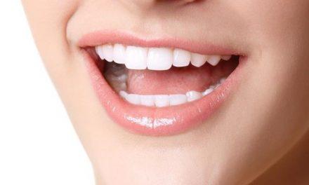 Melyik a legnépszerűbb fogászati kezelés?