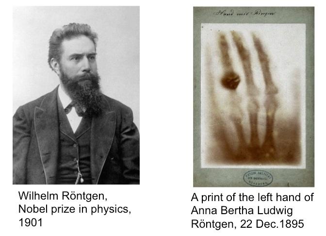 175 éve született Wilhelm Konrad von Röntgen
