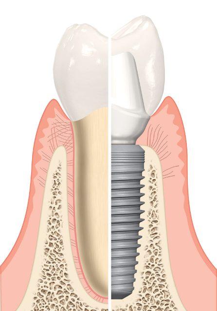 A legjobb, ha azonnal pótoljuk hiányzó fogainkat
